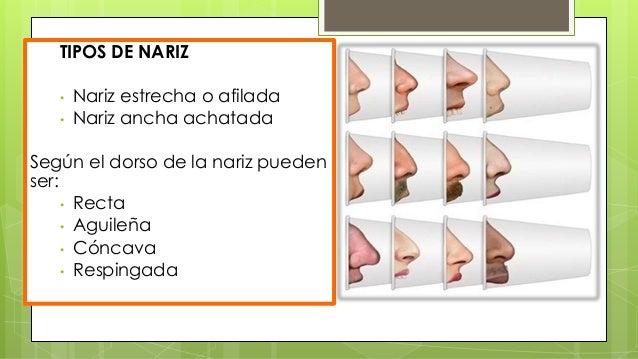  Inspección: deprimir lengua ,mucosa (faringitis crónica , estreptocócica ,descarga posterior )  Palpación : digital o c...
