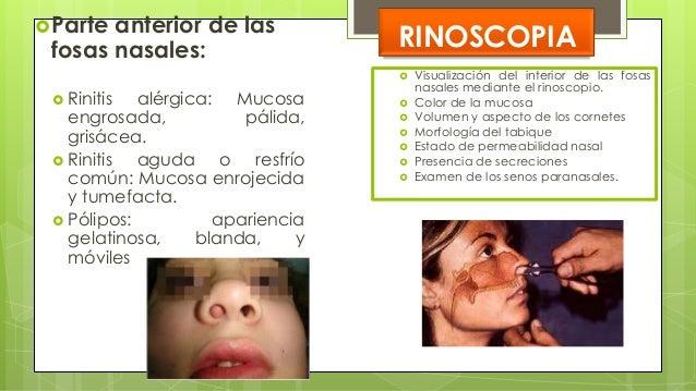 LESIONES FUNDAMENTALES  LEUCOPLASIA: áreas blanquecinas, indoloras en la mucosa bucal  ÚLCERA AFTOSA: ulcera dolorosa, r...