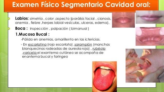 OTITIS EXTERNA AGUDA Eliminación cubierta hidrofóbica (cerumen) Cambio en ph- Alcalino. Exposición epitelio Edema y excori...