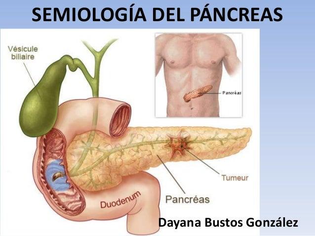 SEMIOLOGÍA DEL PÁNCREAS Dayana Bustos González