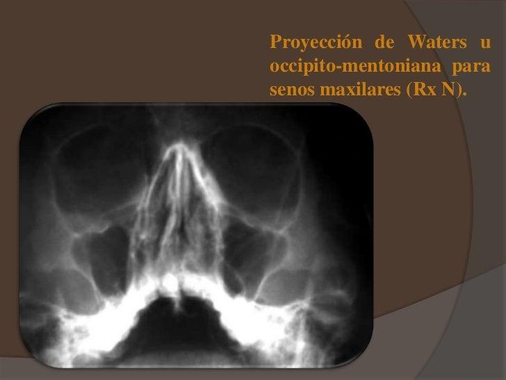 Semiologia de senos paranasales y radiologia y anatomia de seno maxil…