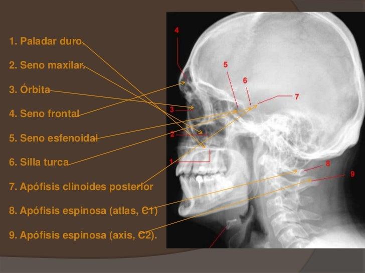 Excelente Radiología Ct Anatomía Imagen - Anatomía de Las ...