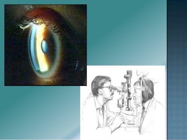 Inervación: • Musculo Recto Externo La lesión de este nervio produce: • Desviación del ojo hacia adentro y imposibilidad...