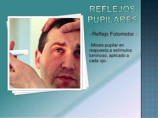 Según la dirección del movimiento ocular, puede ser: •Horizontal •Vertical •Rotatorio Según las causas, el nistagmos, pu...