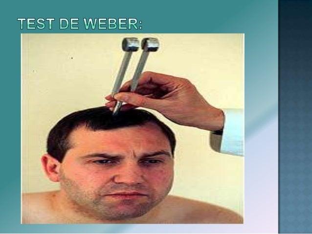  EXPLORACION:  Esternocleidomastoideos – examinar movimientos laterales de la cabeza pidiendo al paciente que dirija el ...