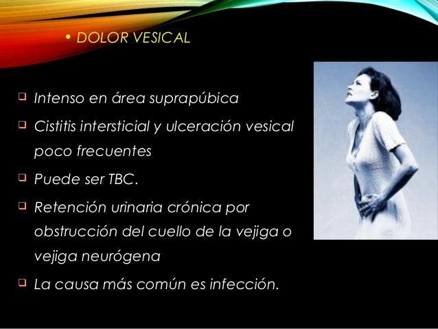 Semiologia renal y urologica