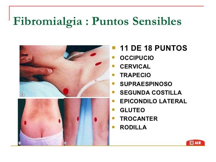 acido urico quitar dolor cuales son los sintomas acido urico alto niveles de acido urico en la mujer