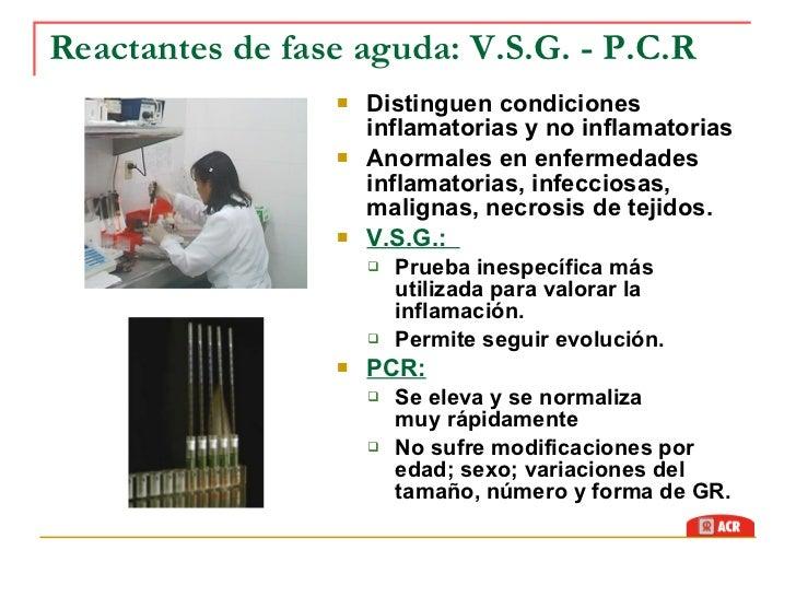 sintomas de alto acido urico como se hace la tecnica de gota gruesa indices altos de acido urico