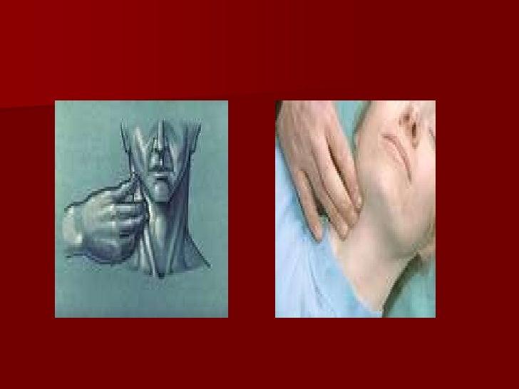 Palpação artéria femoral