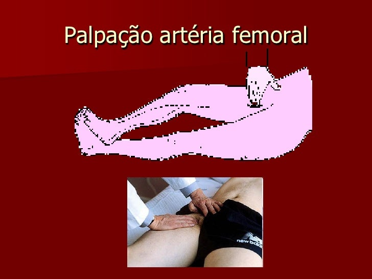 PULSO TIBIAL POSTERIOR