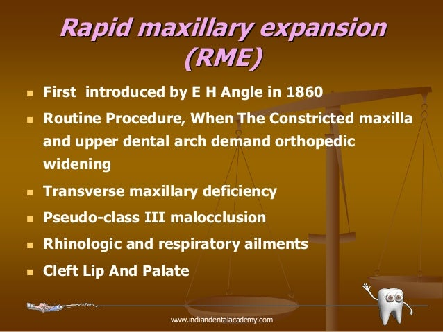 rapid maxillary expansion in adults