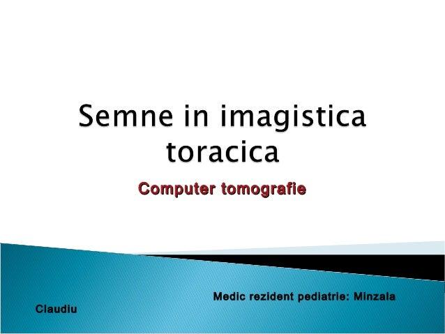 Computer tomografieComputer tomografie Medic rezident pediatrie: Minzala Claudiu