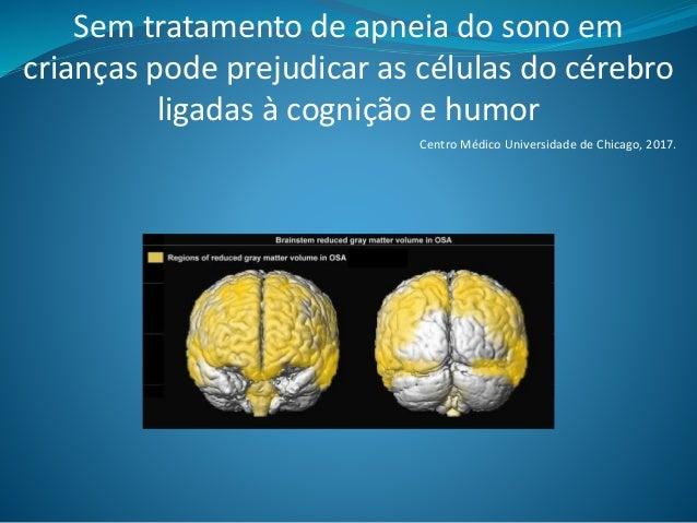Sem tratamento de apneia do sono em crianças pode prejudicar as células do cérebro ligadas à cognição e humor Centro Médic...