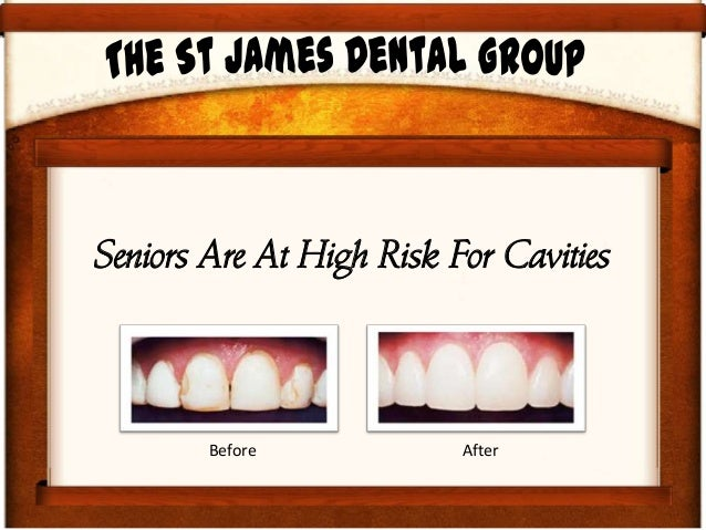 Seniors Are At High Risk For Cavities Before After