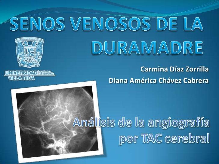 SENOS VENOSOS DE LA DURAMADRE<br />Carmina Díaz Zorrilla<br />Diana América Chávez Cabrera<br />Análisis de la angiografía...
