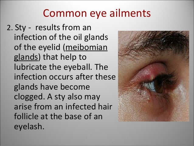 Eye ailments with pictures 2018 FIFA World Cup - Wikipedia