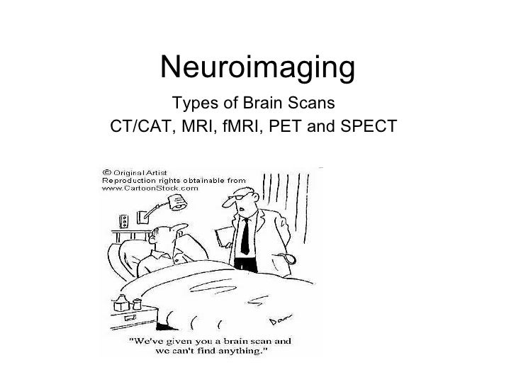 Neuroimaging <ul><li>Types of Brain Scans </li></ul><ul><li>CT/CAT, MRI, fMRI, PET and SPECT </li></ul>