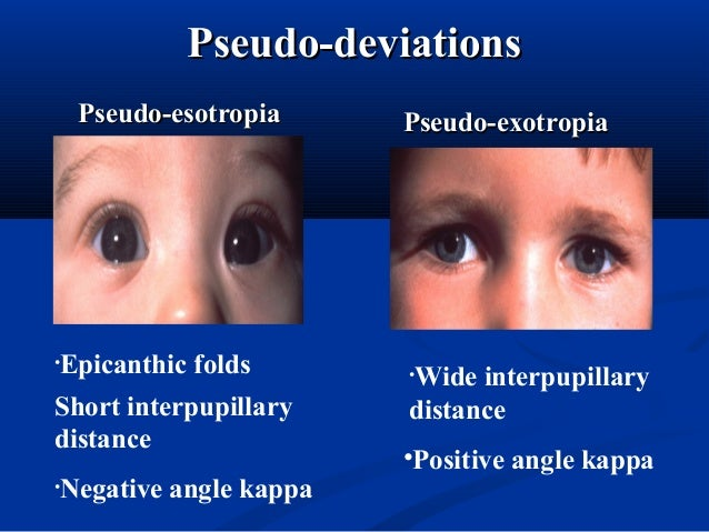 Pseudo-deviationsPseudo-deviations Pseudo-esotropiaPseudo-esotropia Pseudo-exotropiaPseudo-exotropia •Epicanthic folds Sho...