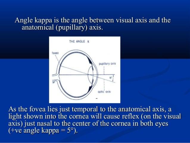 Angle kappa is the angle between visual axis and theAngle kappa is the angle between visual axis and the anatomical (pupil...