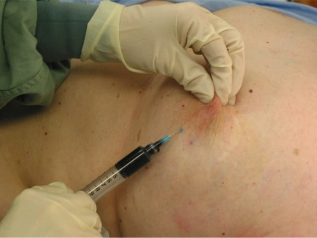 Breast sentinel node injection