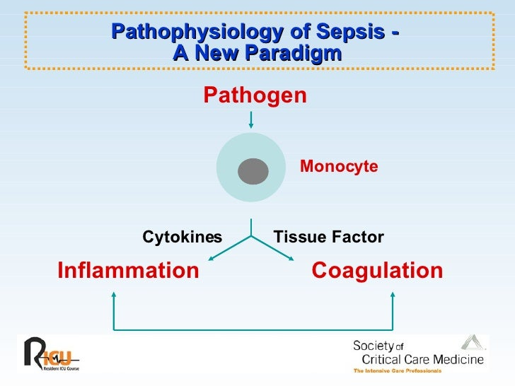 pathophysiology of sepsis Sepsis is the body's extreme response to an infection it is life-threatening and without timely treatment can rapidly cause tissue damage, organ failure, and death.