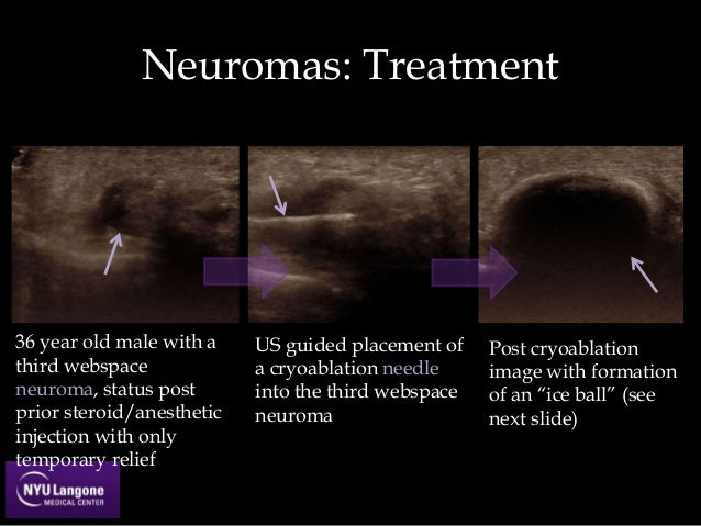 morton's neuroma steroid injection success rate