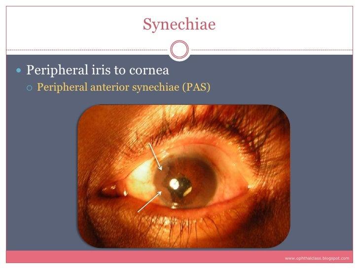 Synechiae   Peripheral iris to cornea    Peripheral anterior synechiae (PAS)                                            ...