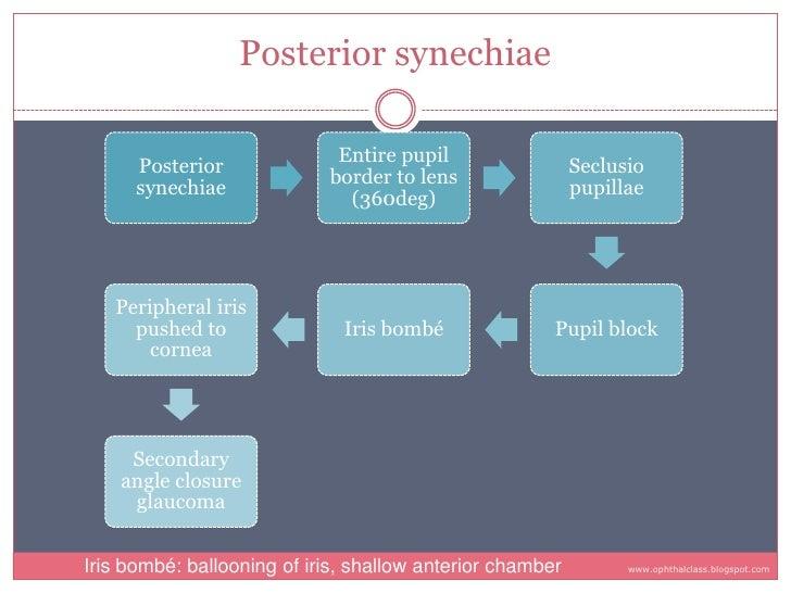 Posterior synechiae                               Entire pupil       Posterior                                            ...
