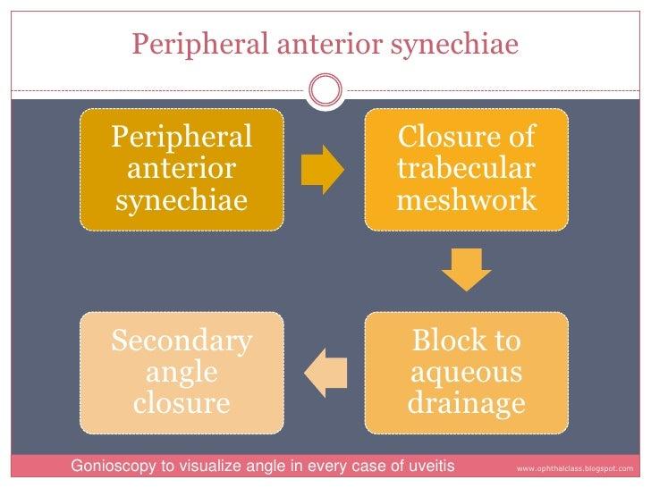 Peripheral anterior synechiae        Peripheral                              Closure of       anterior                    ...