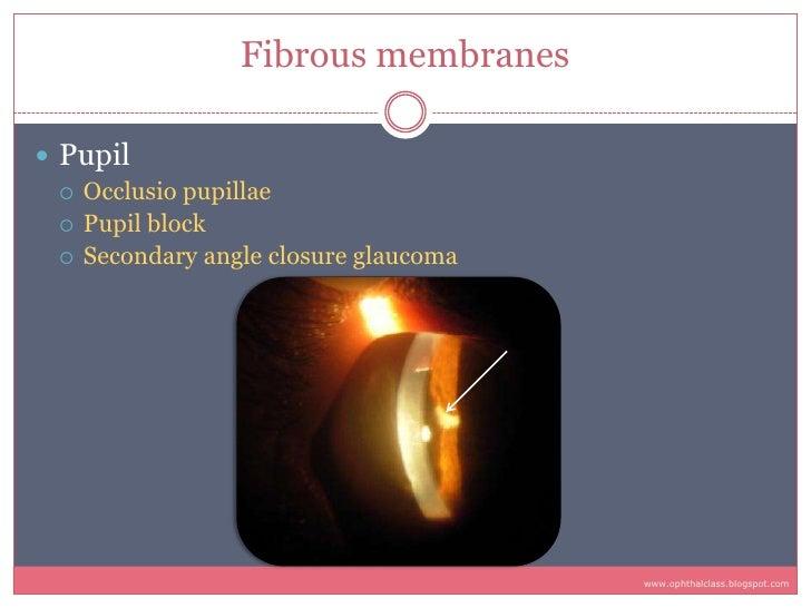 Fibrous membranes   Pupil    Occlusio pupillae    Pupil block    Secondary angle closure glaucoma                     ...