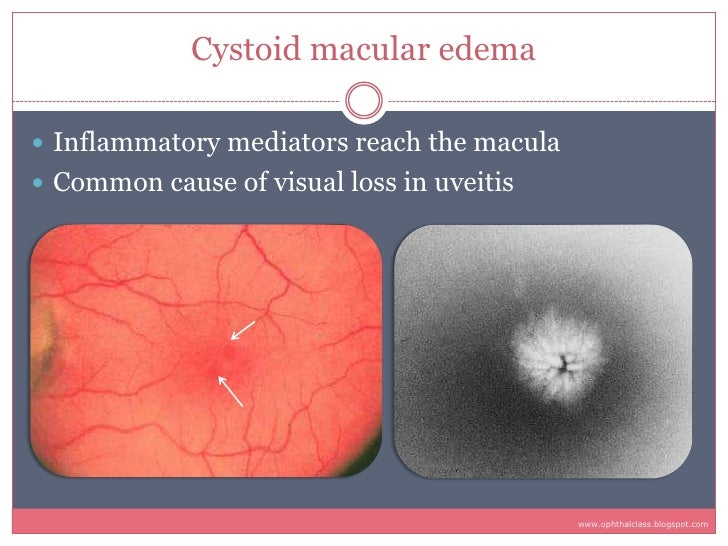 Cystoid macular edema   Inflammatory mediators reach the macula  Common cause of visual loss in uveitis                 ...