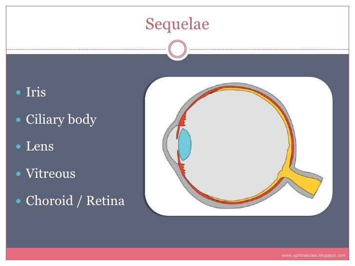 Sequelae     Iris   Ciliary body   Lens   Vitreous   Choroid / Retina                                    www.ophthalc...