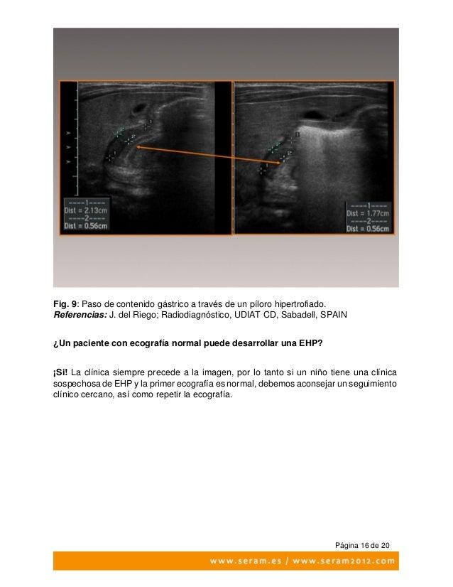 Seram2012 s 0641 (1) hipertrofia pilorica