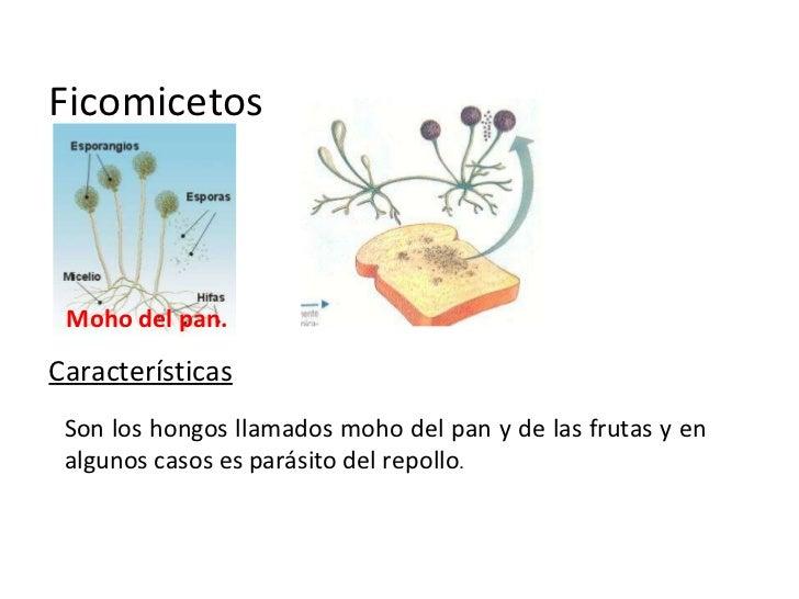 Top Five Tipos De Microorganismos Responsables Bacterias
