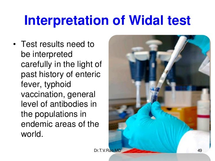 Interpretation of Widal test• Test results need to  be interpreted  carefully in the light of  past history of enteric  fe...