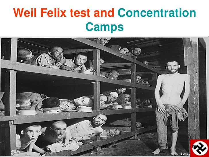 Weil Felix test and Concentration              Camps              Dr.T.V.Rao MD     95