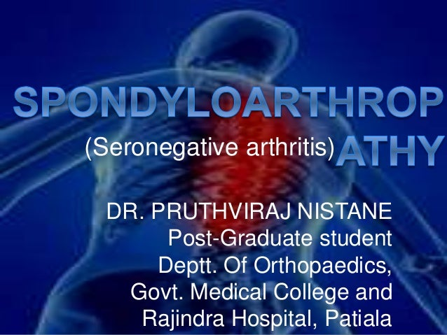 (Seronegative arthritis) DR. PRUTHVIRAJ NISTANE Post-Graduate student Deptt. Of Orthopaedics, Govt. Medical College and Ra...