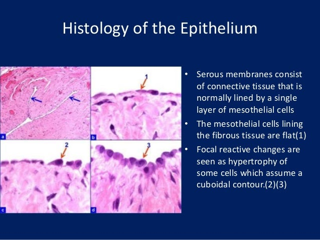 fluid cytology in serous cavity effusions