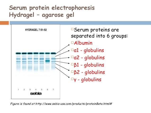 Serum protein electrophpresis