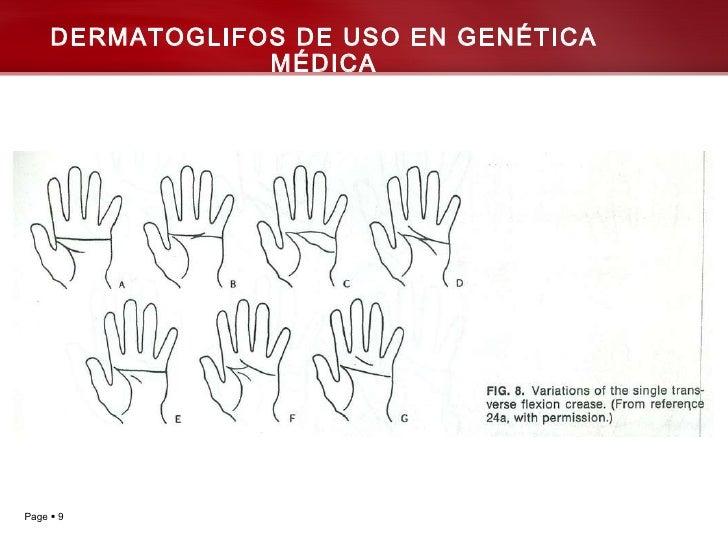 DERMATOGLIFOS DE USO EN GENÉTICA MÉDICA