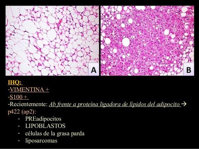 Angiolipoma   Radiology Reference Article   Radiopaedia.org