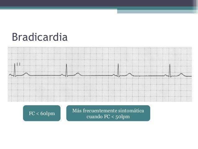Manejo de bradicardia y taquicardia sintomáticas en Urgencias (agosto 2013) Slide 3