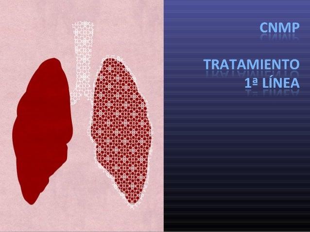 Oncología Médica  Revisión  Introducción  Caso 1: Tratº según perfil molecular  Caso 2: Tratº según histología I  Caso...