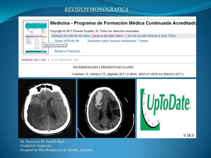 REVISION MONOGRAFICA<br />ENFERMEDADES CEREBROVASCULARES<br />V 18.3<br />Dr. Francisco M. Parrilla Ruiz.<br />Unidad de U...