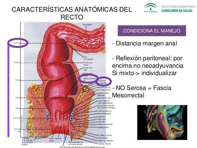 Cáncer rectal (diagnóstico y manejo. Carmen Molina. R2 Dig)