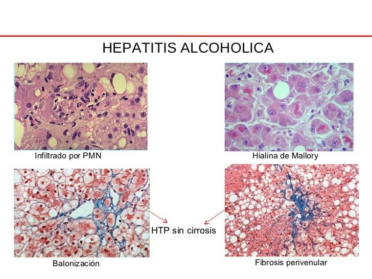 Sesion Hepatopatia