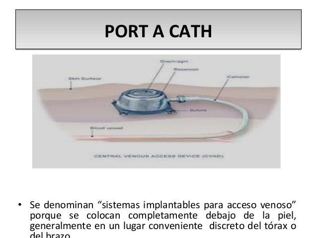 portacath