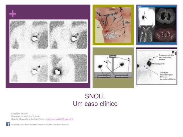 +SNOLLUm caso clínicoChristiane WiefelsResidente de Medicina NuclearHospital Universitário Antônio Pedro – medicina.nuclea...