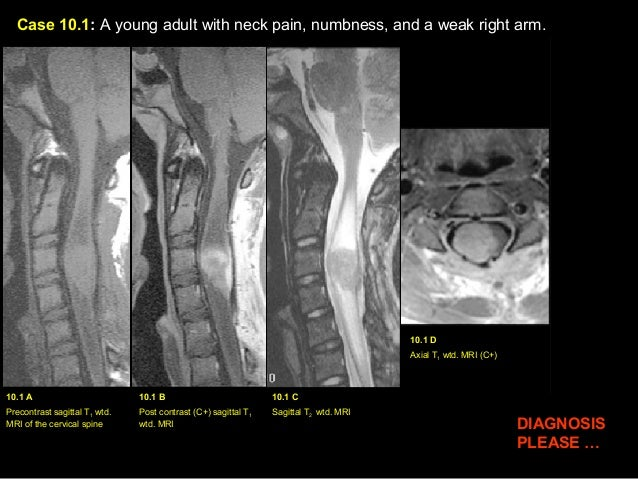 Case 10.1: A young adult with neck pain, numbness, and a weak right arm. 10.1 A Precontrast sagittal T1 wtd. MRI of the ce...