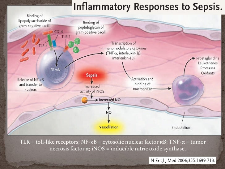 severe sepsis and septic shock, Skeleton